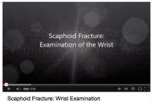Scaphoid fracture Examination